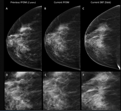 Partial Breast Irradiation Effective, Convenient Treatment Option for Low-Risk Breast Cancer