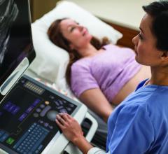 Carestream, Frost & Sullivan Award, new product innovation, medical imaging, North America