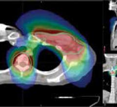 The TomoTherapy and CyberKnife Systems Highlight Quality of Care for Cancer Patients