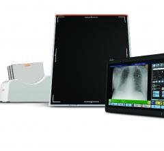 Carestream Introduces Wireless Tablet-Based DR Converter