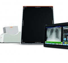 Carestream Digital X-ray System Deployed at Remote Antarctic Station