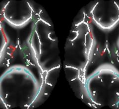 ADHD Medication May Affect Brain Development in Children