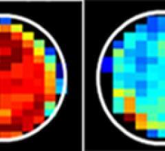 MRI, sugar, cancer cells, Johns Hopkins, Jeff Bulte, Xiaolei Song