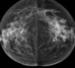 Women Benefit From Mammography Screening Beyond Age 75