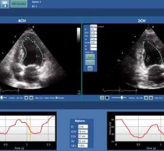 DiA Imaging Analysis Partners With GE Healthcare on Automatic Imaging Analysis Tools