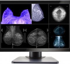 Double Black Announces Gemini Series Monitors for Multimodality and Digital Breast Imaging