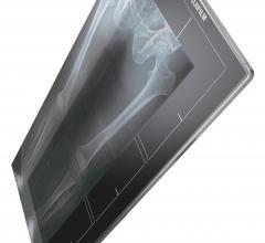 Fujifilm Receives Vizient Innovative Technology Designation for Digital Radiography Solutions
