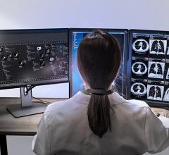 HealthMyne Highlights Value of Quantitative Data in Oncology Reads at RSNA 2017