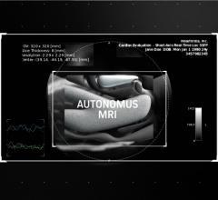 HeartVista Announces One Click Autonomous MRI Solution