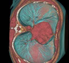 statins, heart scan, CT scan