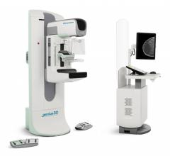 FDA Approves New Imaging Features on Hologic 3Dimensions Mammography System