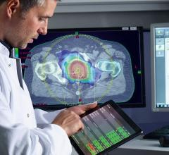 IBA Launches Monte Carlo Patient QA for Varian Halcyon at AAPM 2019