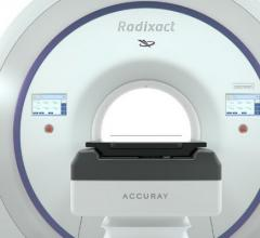 Accuray Receives 510(k) Clearance for iDMS Data Management System