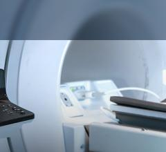 MRI-guided focused ultrasound
