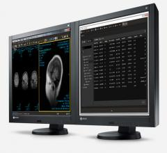 Intelerad Commits $75 Million to R&D for New AI and Cloud-based Medical Imaging Software