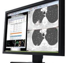 pacs teleradiology rsna 2013 carestream vue