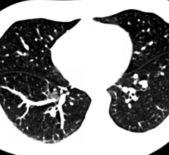 lung cancer recurrence, biomarker blood test, CT scans, 2017 Multidisciplinary Thoracic Cancers Symposium, clinical study