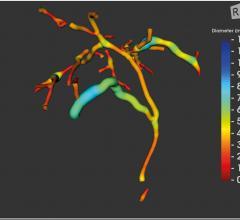FDA Clears Perspectum's MRCP+ Digital Biliary Tree Viewer