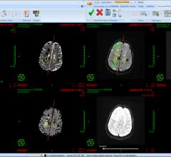 Impaired Brain Pathways May Cause Attention Problems After Stroke