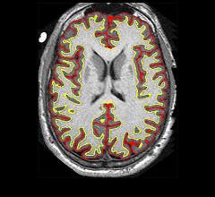 Study Finds Multiple Sclerosis Drug Slows Brain Shrinkage