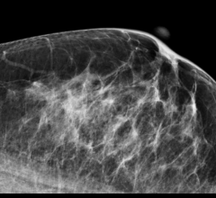 LifeImage, Mammosphere, mammography image exchange network, acquisition