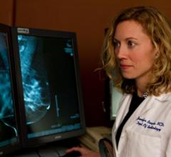 Radiologists Quickly Improve Screening Performance With 3-D Mammography
