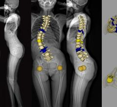 EOS Imaging System Installed at Massachusetts General Hospital
