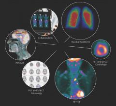 Mirada Medical Joins U.K. Consortium Exploring Healthcare AI