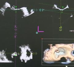 Bay Labs Announces New Echocardiography Guidance Software Data at ASE 2019 Scientific Sessions