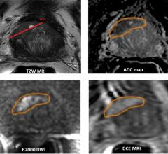 Hypofractionated Radiation Provides Same Prostate Cancer Outcomes as Conventional Radiation