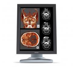 Barco Incorporates NeoLogica RemotEye Suite for Diagnostic Display Demos in North America