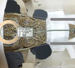 Functional MRI Assesses Crocodile Brain Listening to Classical Music