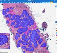 Push for Personalized Medicine Driving Whole Slide Imaging System Growth