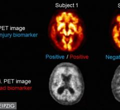 Single Dual Time-point PET Scan Identifies Dual Alzheimer's Biomarkers