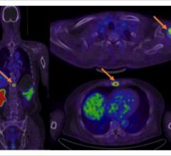 PET/CT, primary and metastatic prostate cancer, Journal of Nuclear Medicine study, JNM