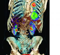 FDG PET/CT, lung cancer, radiation therapy, AJR study, American Journal of Roentgenology