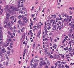 New Pathology Guideline Advances Accuracy in Breast Cancer Testing
