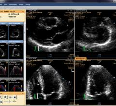 Cardiac Imaging Reveals Roots of Preeclampsia Damage in Pregnant Women