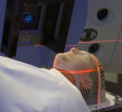 150-Year-Old Drug Might Improve Radiation Therapy for Cancer