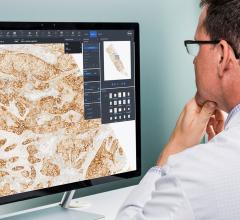 Roche Launches uPath Enterprise Digital Pathology Software