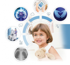 At RSNA 2018, radiology professionals will discover intelligent radiography powered by MUSICA, at Agfa's booth.