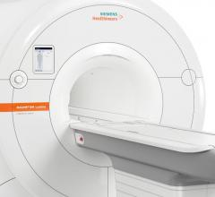FDA Clears Magnetom Lumina 3T MRI From Siemens Healthineers