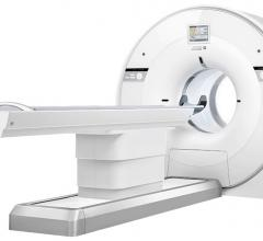 United Imaging Announces First U.S. Clinical Install of uMI 550 Digital PET/CT System