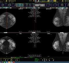 Ikonopedia and Konica Minolta Showcase Integrated Breast Imaging Workflow and Reporting at RSNA