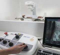Agfa HealthCare Previews New DR 800 Imaging System at AHRA 2017