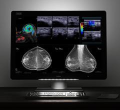 Barco Presents Multimodality Imaging Display Solutions at SIIM 2017