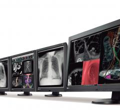 Eizo to Unveil Final Models of LED-Backlit Diagnostic Monitors at RSNA 2012