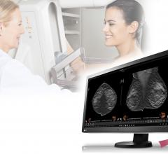 Eizo, RadiForce RX850 multimodality monitor, FDA clearance, tomosynthesis