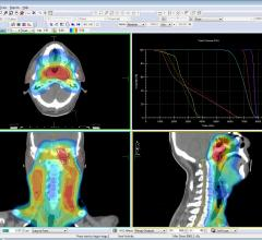 Elekta, Monaco radiotherapy treatment planning system, radiation therapy, AAPM studies