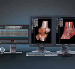 Fovia and iCRco Deliver High Definition Volume Rendering to the Orthopedic Market